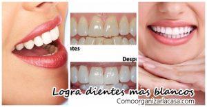 consejos-para-tener-dientes-mas-blancos