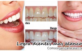 Consejos para tener dientes mas blancos