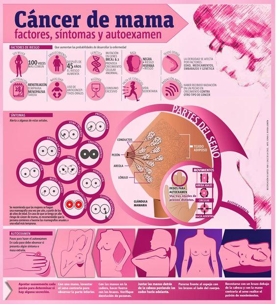 Sintomas del cáncer de mama