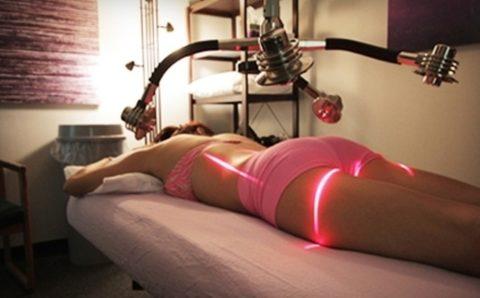 Contorno del cuerpo con láser de zerona