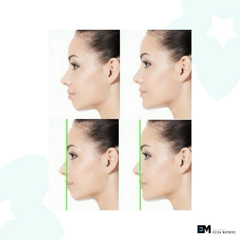 Equipo para perfilometría Facial