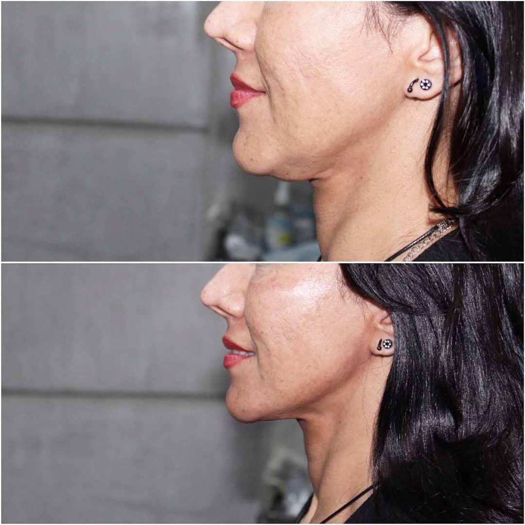 lifting con hilos para resaltar la belleza del rostro