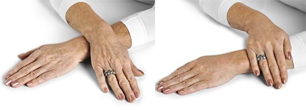 radiesse para rejuvenecer manos