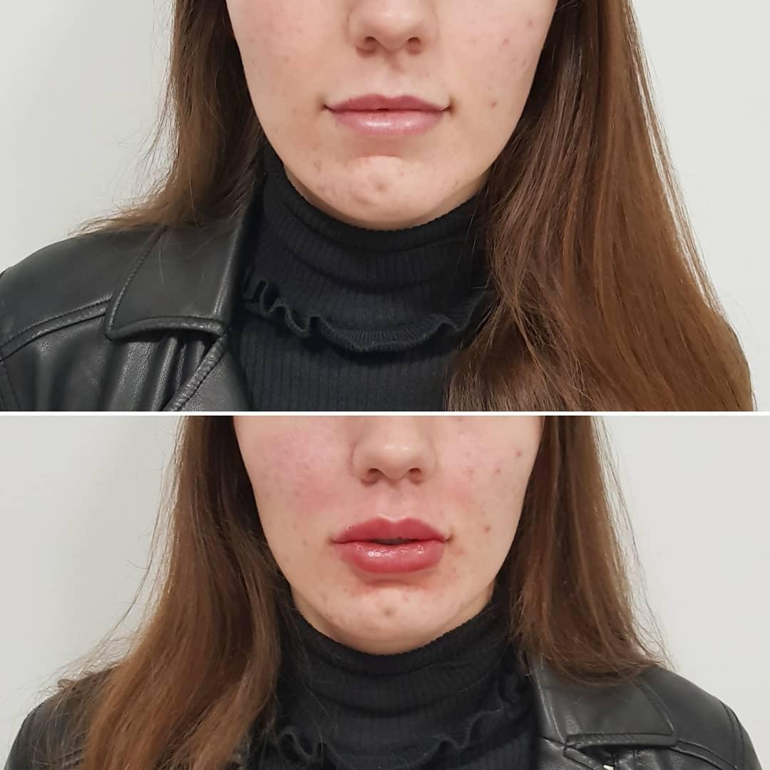 relleno y perfilado de labios con belotero lips