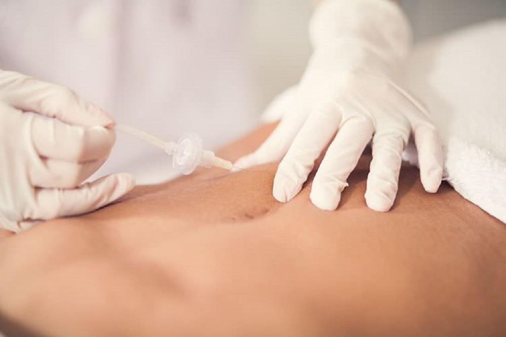 tratamiento para moldear el cuerpo sin cirugía con carboxiterapia